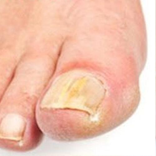 Лечение грибка ногтей!